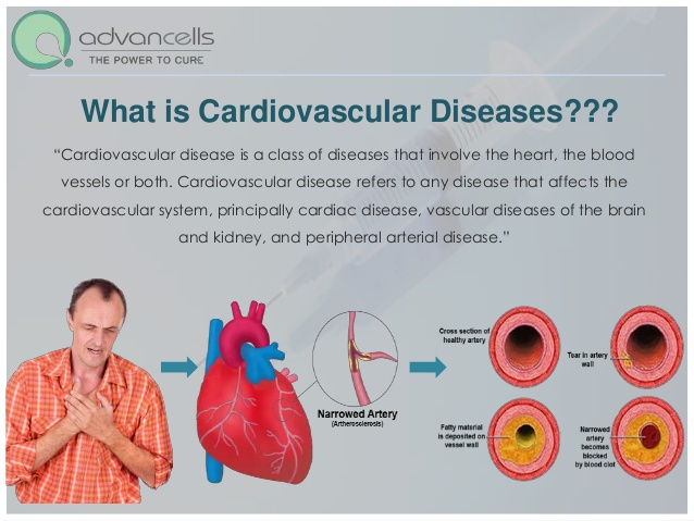 the causes types and prevalence of heart disease
