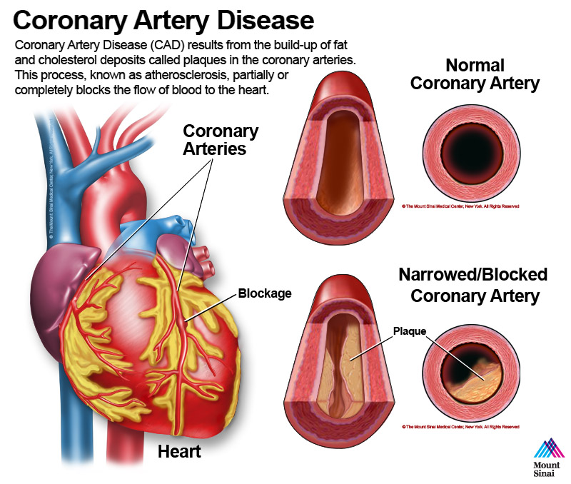 the proper treatment for blocked or narrowed coronary arteries Coronary artery disease (also called coronary heart disease) is the number-one killer of both men and women in the united states, and it's the most common type of heart disease this often preventable disease causes the dangerous thickening and narrowing of the coronary arteries—the vessels that.