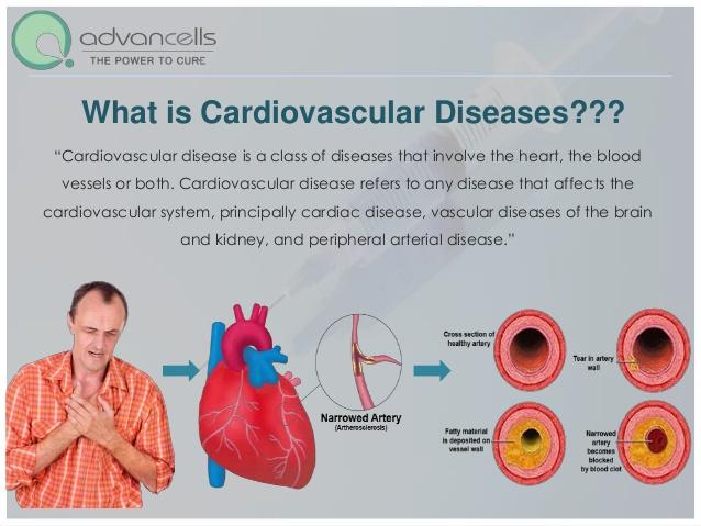 cardiovascular-diseases-treatment-heart-disease-treatment-4-638