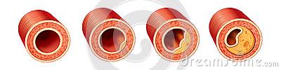 coronary-artery-disease-progression-33205287